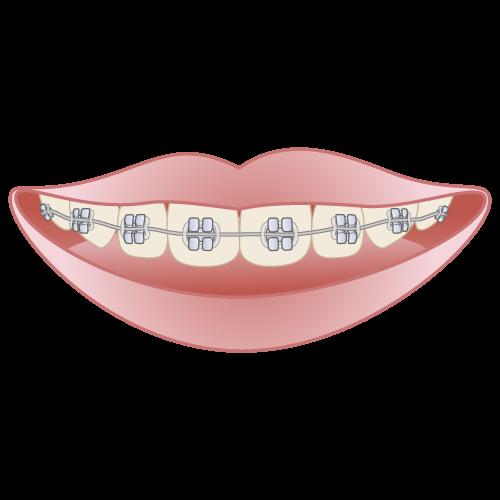 orthodontics003